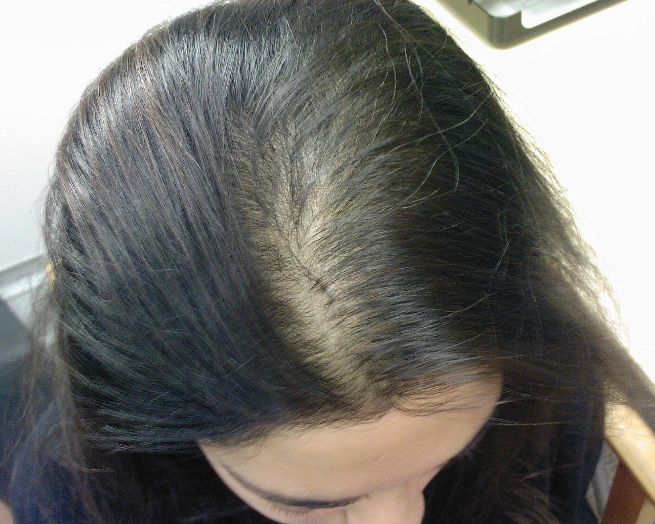 cause della perdita dei capelli nelle donne