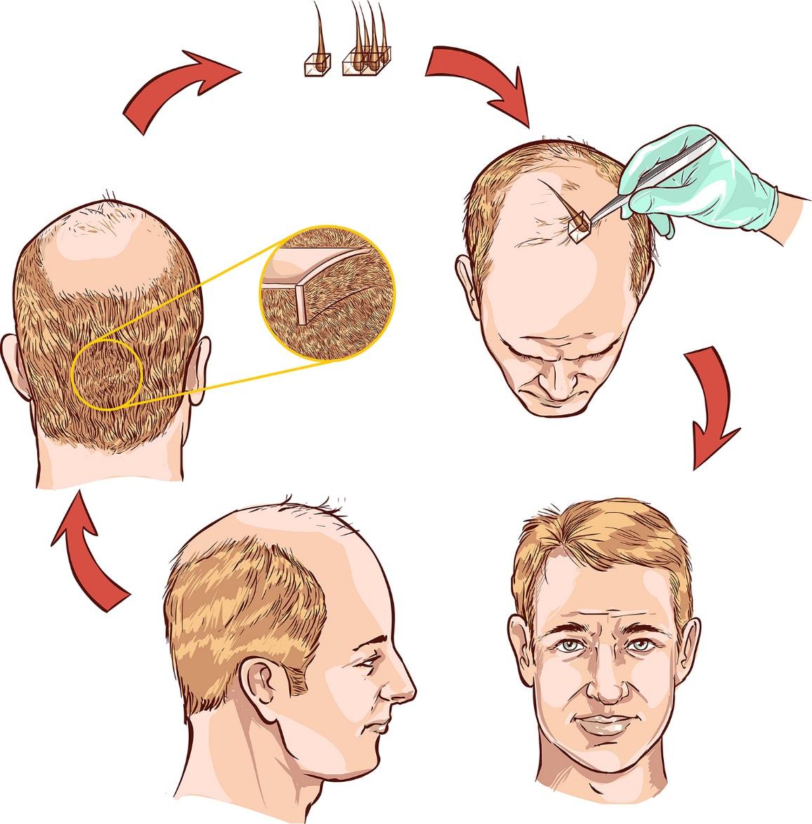 crescita dei capelli veloce