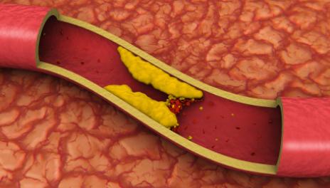 rischi terapia ormonale menopausa